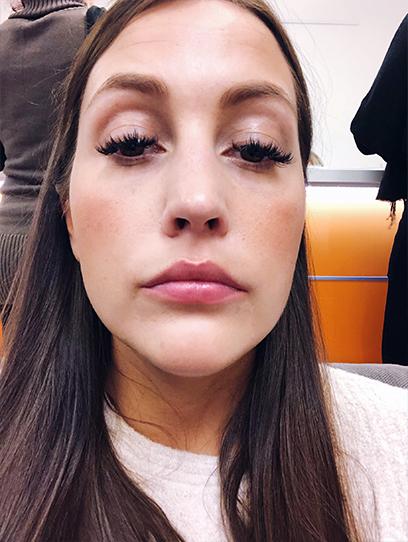 Lippenunterspritzung M1 Beauty zweite Behandlung Vorher
